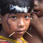 brasile Yanomami morbillo