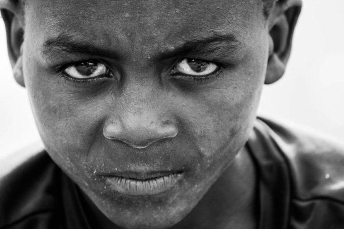 povertà sud miseria