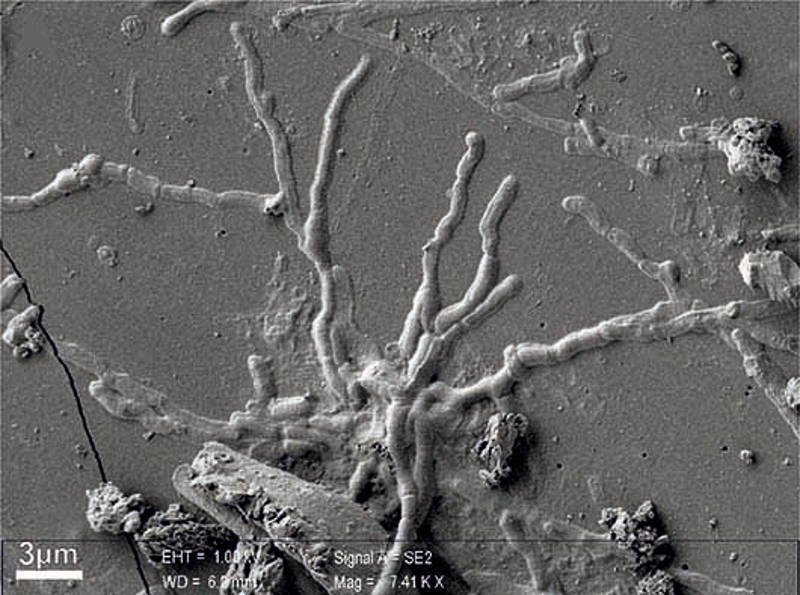 Herculaneum Brain axons from the human CNS